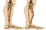 708213x150 - تحقیق درباره ی استخوان ها